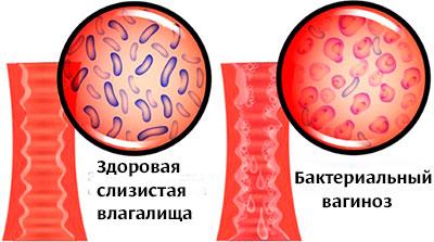 Микрофлора влагалища при бактериальном вагинозе