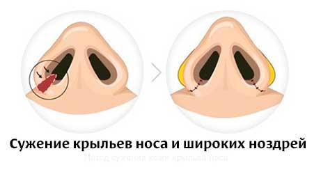 Ринопластика при широких ноздрях